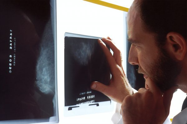 São esperados 65 mil novos casos de câncer de próstata no Brasil em 2020